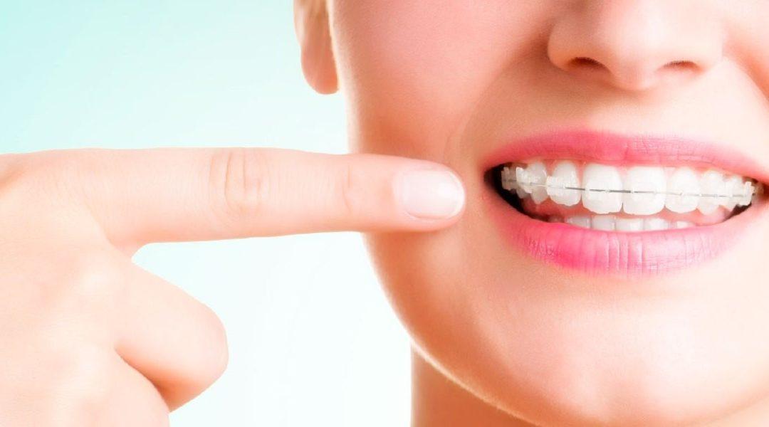 Qué comer si tengo ortodoncia