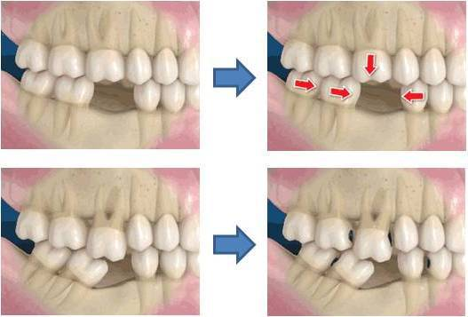 Falta de piezas dentales